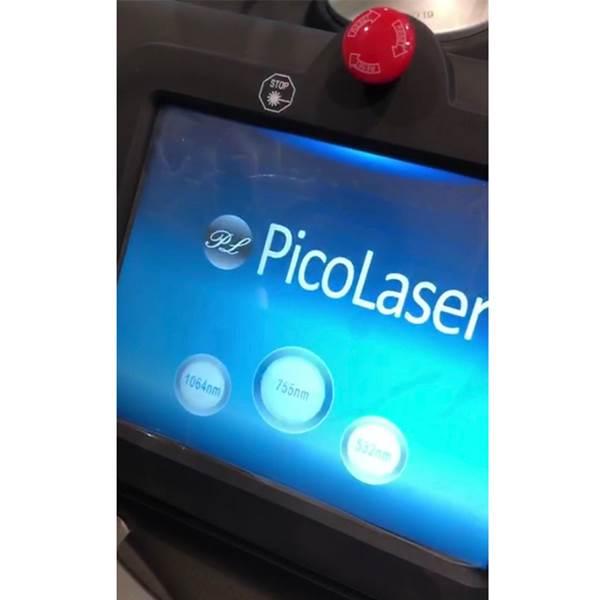 Fotona pico second laser